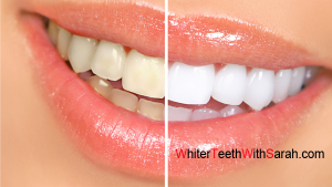 natural-teeth-whitening